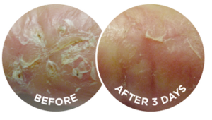 The before and after photographs are typical of the effects of Flexitol Very Dry Skin Cream
